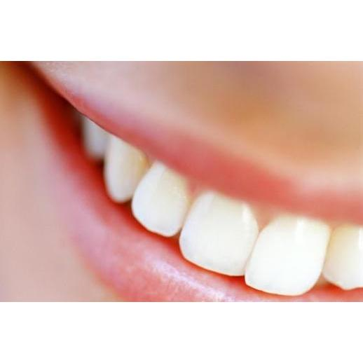 Девять мифов зубной имплантации: отвечают специалисты фото картинки фотки фотографии